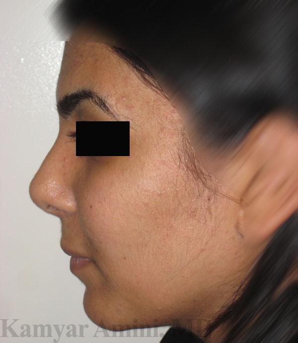 Rhinoplasty for nasal reconstruction